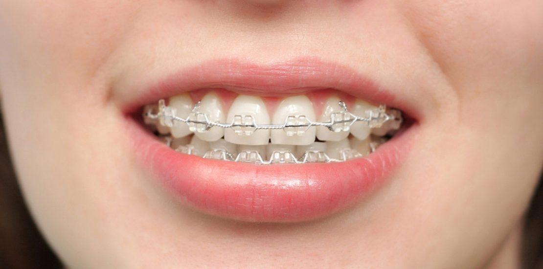 Kết quả hình ảnh cho teenagers teeth